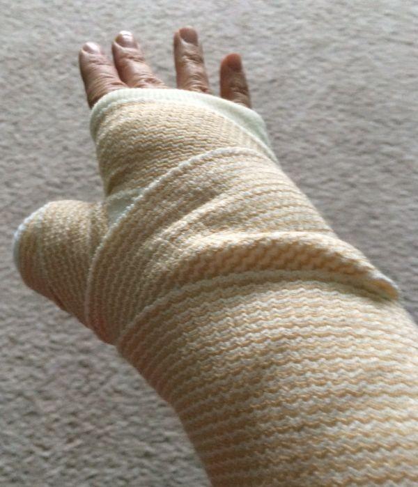 broken-wrist